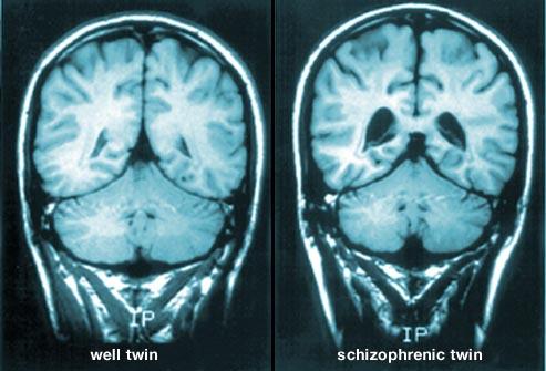 101webmd rf photo of mri brain scans
